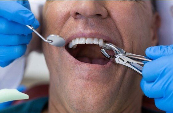 Extractions, The Denture Place