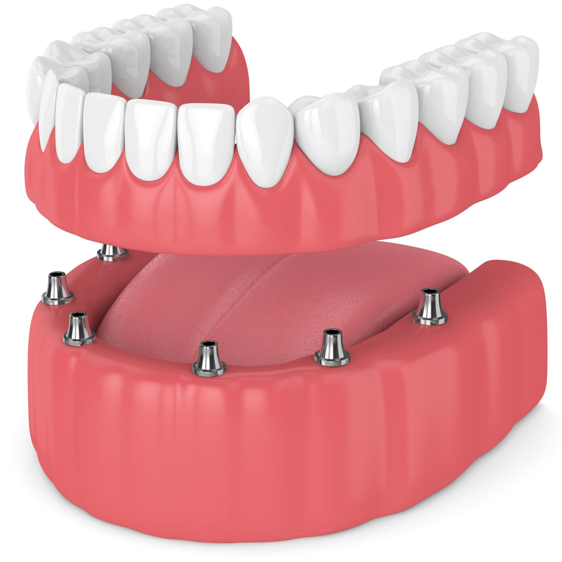 Implant Supported Dentures, The Denture Place